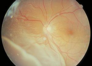 白い部分が剥離した網膜