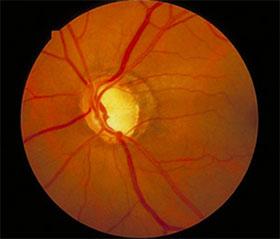 緑内障で傷んだ視神経